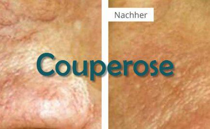 Couperose Behandlung