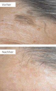 Die Pigmentation auf der Haut des Grundes und die Behandlung des Fotos